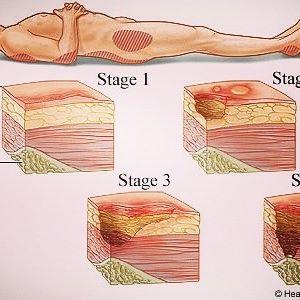 درمان زخم بستر , درمان زخم بستر با کامفیل