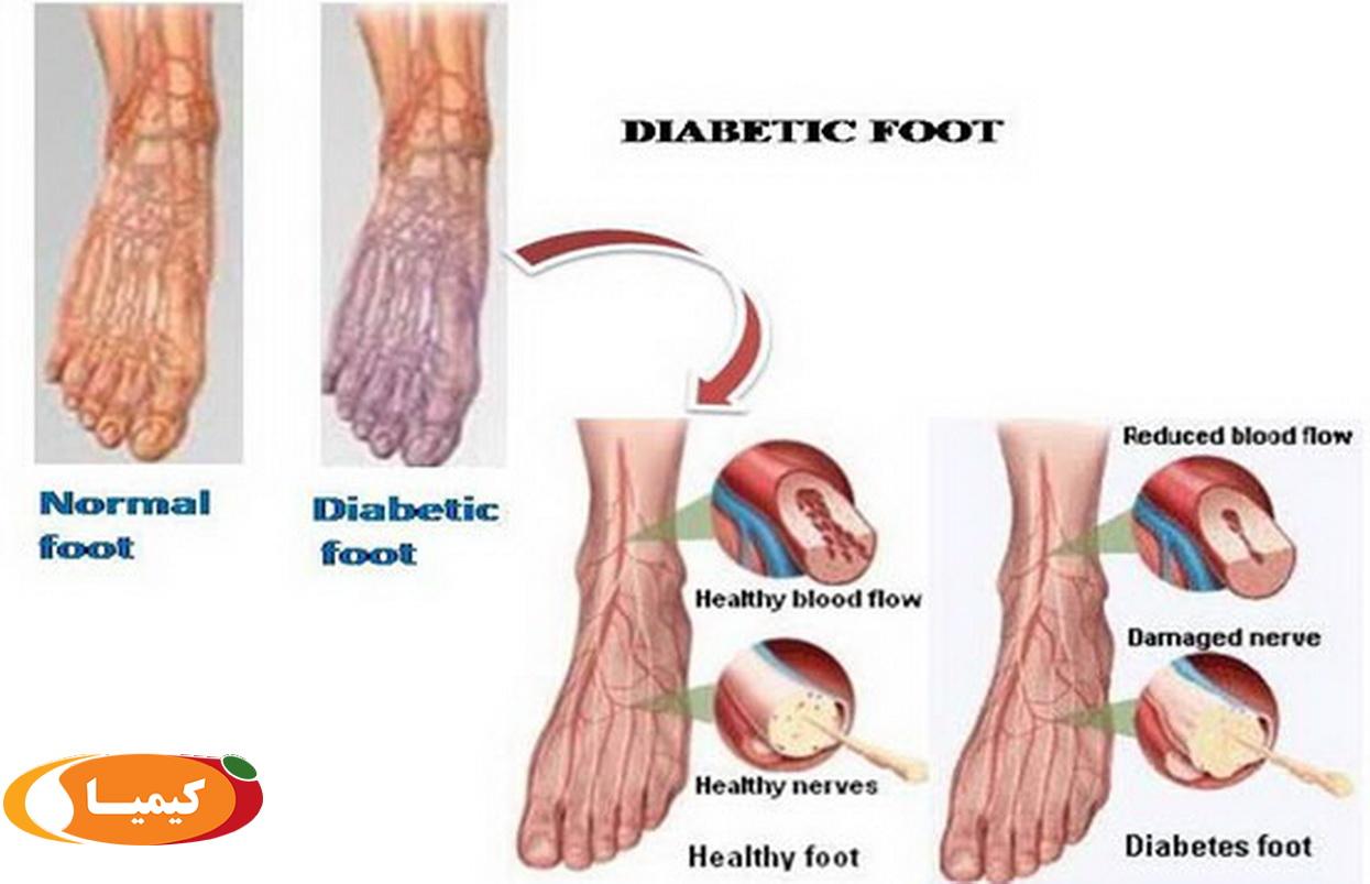 درمان زخم دیابت , درمان زخم دیابت با روشی جدید .