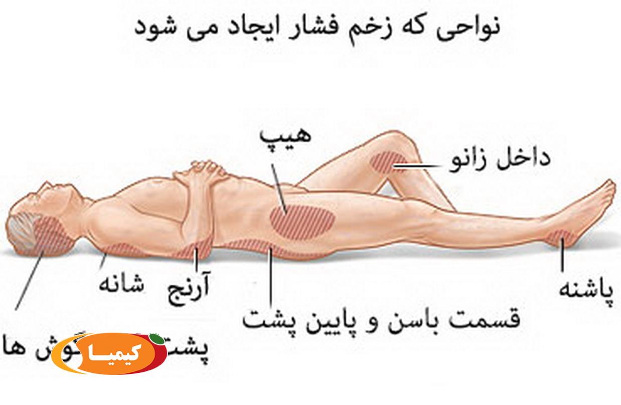 درمان زخم بستر , درمان زخم بستر با جراحی