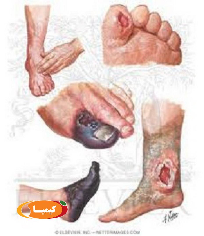 درمان زخم دیابت , درمان زخم دیابت در افراد مبتلا به دیابت