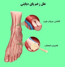 درمان زخم دیابت , درمان زخم دیابت نوین 97.